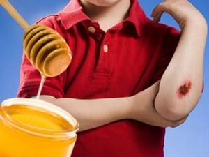 miele e ferite3