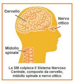 sclerosimultipla1