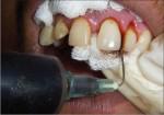 parodontite propoli